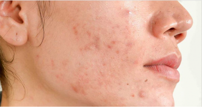 How to deal with Hormonal Acne?